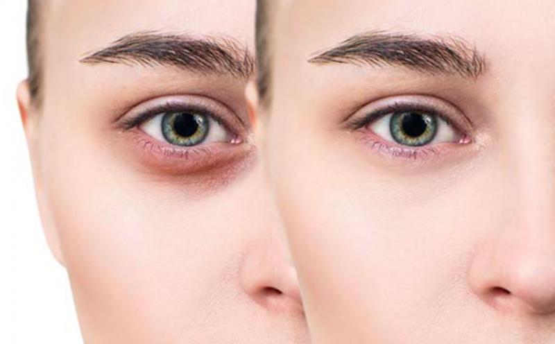 Eyes-dark-circles-panda eyes-improvement-methods-remove